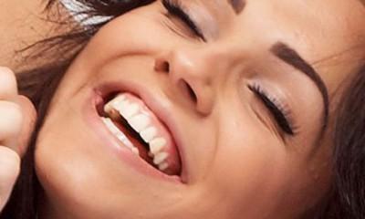 Izbeljivanje zuba  %Post Title