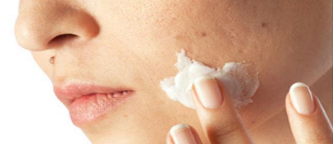 6 najgorih namirnica za vašu kožu