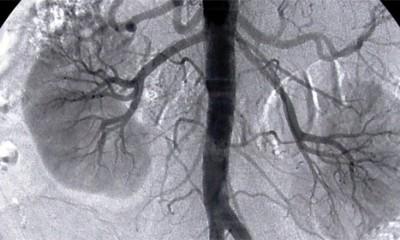 Koliko koštaju vaši organi na crnom tržištu
