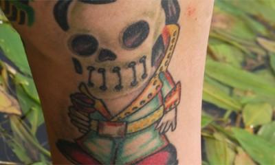 Opasno uklanjanje tetovaža
