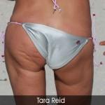 Deset najlošijih bikini momenata  %Post Title