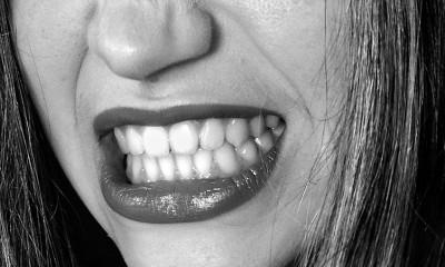Proverite da li imate ovo na zubima?