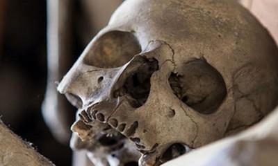 Lobanje stare 6000 godina sa operativnim zahvatima  %Post Title