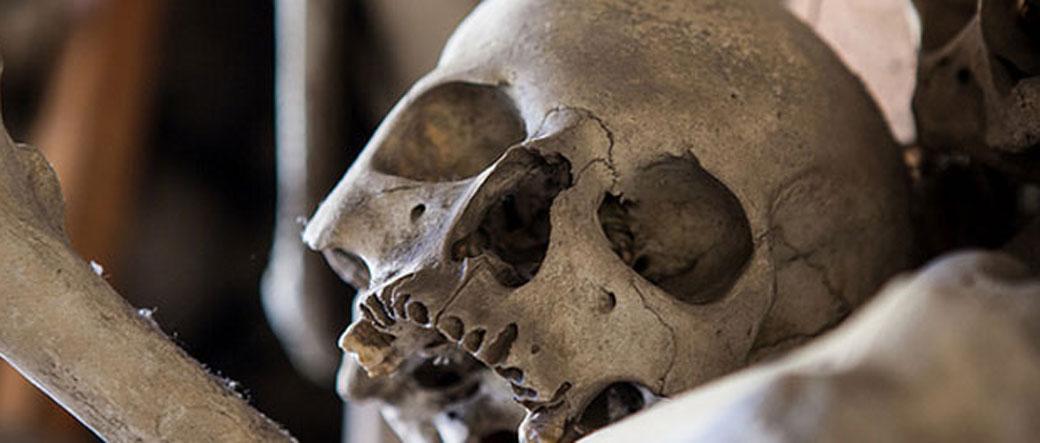 Lobanje stare 6000 godina sa operativnim zahvatima